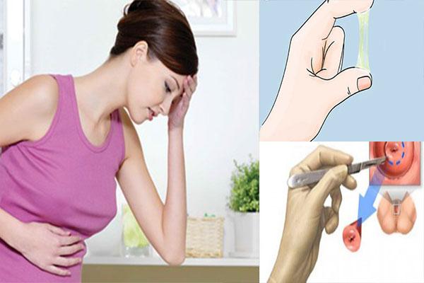 Tìm hiểu về viêm lộ tuyến cổ tử cung