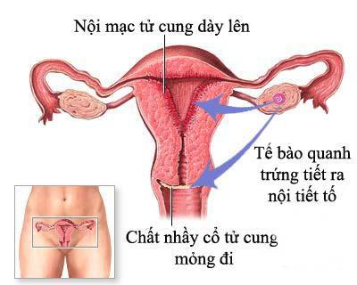 Viêm nội mạc tử cung có dấu hiệu gì