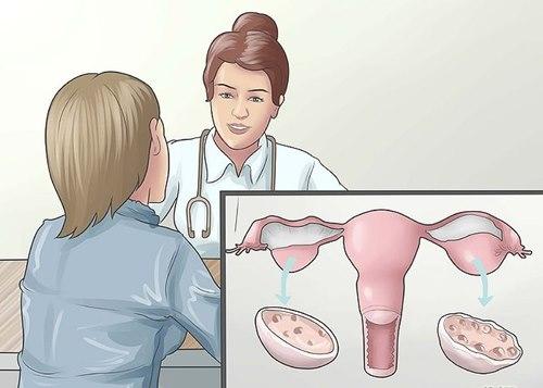 Buồng trứng đa nang có dấu hiệu gì