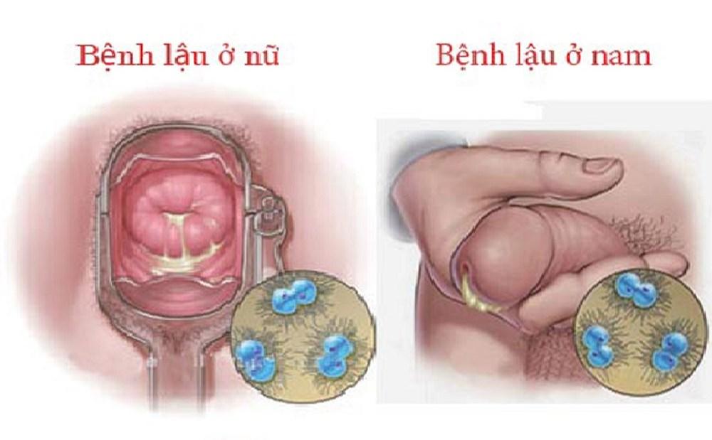 bệnh lậu ở nam và nữ