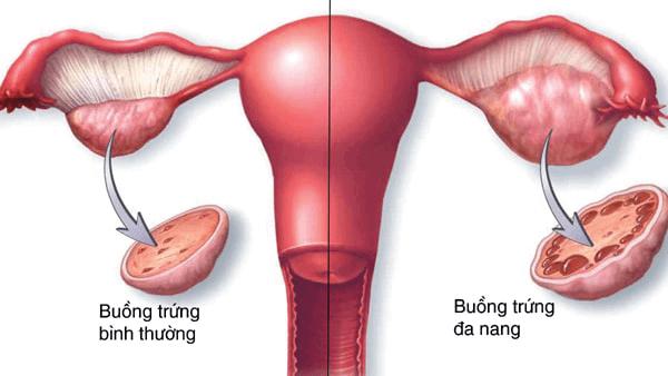 Tìm hiểu về bệnh buồng trứng đa nang
