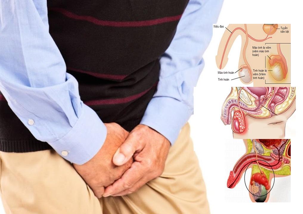 tìm hiểu về bệnh viêm tinh hoàn