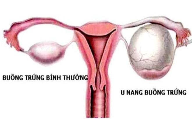 U nang buồng trứng là bệnh gì
