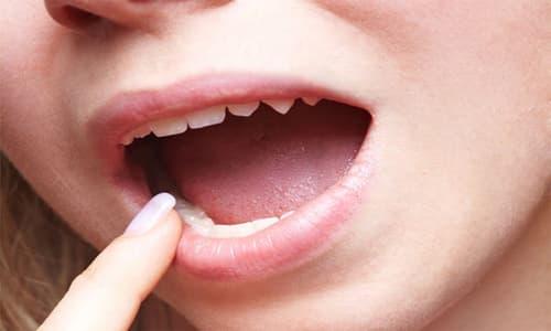 Nổi mụn đỏ ở cuống lưỡi là bệnh gì?