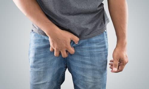 Các bệnh thường gặp ở bộ phận sinh dục nam giới ?