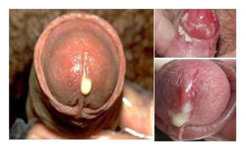 Dương vật chảy mủ là biểu hiện bệnh gì?