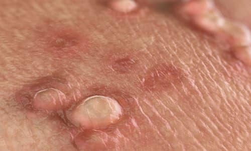 Mụn cóc sinh dục: Nguyên nhân, biểu hiện, chẩn đoán và các chữa trị
