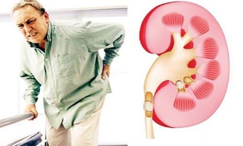 Phác đồ điều trị viêm đường tiết niệu mới nhất 2021