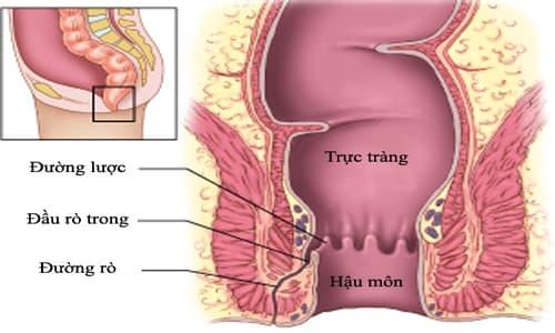 Bệnh rò rỉ hậu môn: Nguyên nhân, biểu hiện, chẩn đoán và chữa trị