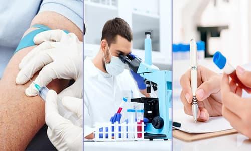 Xét nghiệm máu có phát hiện bệnh giang mai không?