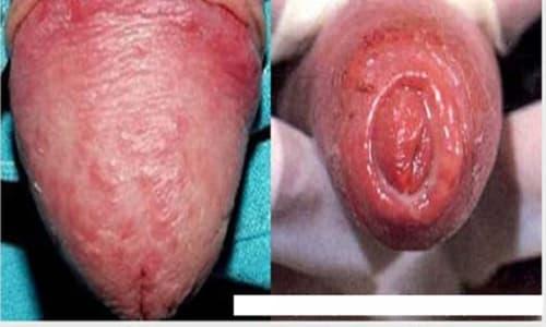 Đỏ bao quy đầu là bệnh gì? Cách chữa trị đỏ bao quy đầu