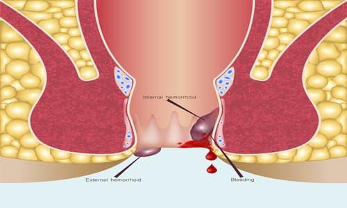 Bệnh lòi dom: Nguyên nhân, dấu hiệu và cách chữa bệnh