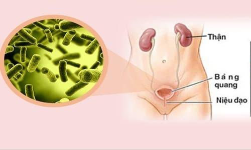 Nhiễm trùng đường tiểu ở nam giới là bệnh gì?
