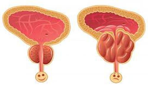 Phì đại tiền liệt tuyến: Nguyên nhân, triệu chứng, chẩn đoán và cách chữa trị bệnh