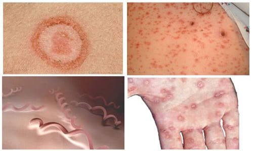 Triệu chứng bệnh giang mai giai đoạn 2