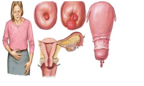 Polyp cổ tử cung: Nguyên nhân, triệu chứng và cách điều trị