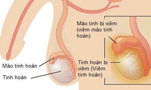 Khám chữa viêm đau tinh hoàn ở đâu?