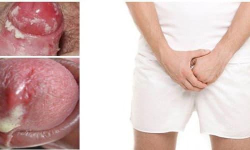 Bệnh lậu ở nam giới: Nguyên nhân, dấu hiệu và cách chữa bệnh