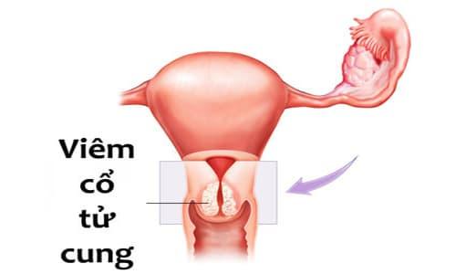 Viêm cổ tử cung nhẹ: Nguyên nhân , dấu hiệu và cách điều trị
