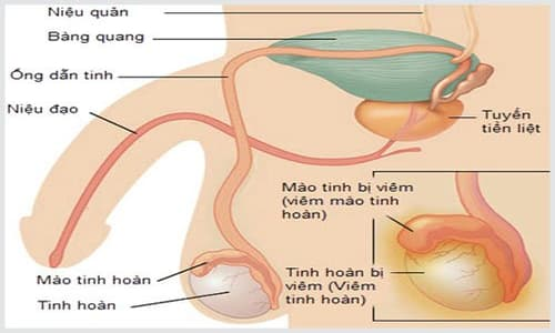 5 Nguyên nhân viêm tinh hoàn ở nam giới