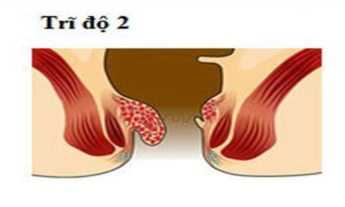 Bệnh trĩ cấp độ 2: Triệu chứng và cách điều trị