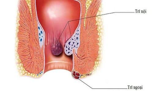Bệnh trĩ nhẹ: Nguyên nhân, dấu hiệu và cách chữa trị