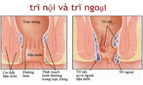 Phân biệt trĩ nội và trĩ ngoại khác nhau như nào? Cách điều trị