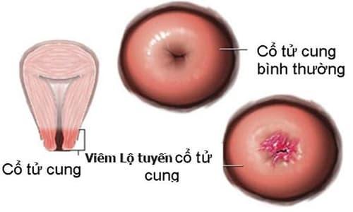 Viêm cổ tử cung nặng: Nguyên nhân, dấu hiệu và cách chữa trị