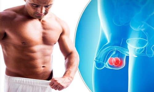 Tổng hợp các bệnh tinh hoàn và cách chữa trị