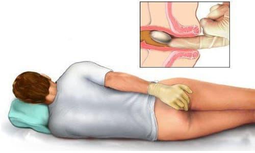 Bệnh trĩ cấp độ 3: Nguyên nhân, dấu hiệu và cách điều trị
