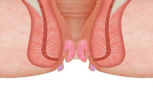 Bệnh trĩ nặng là gì? Nguyên nhân, dấu hiệu và cách chữa bệnh