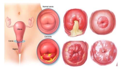 Viêm cổ tử cung: Nguyên nhân, dấu hiệu nhận biết và cách chữa trị